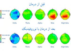 نقشه مغزی درمان با نورفیدبک در مرکز مشاوره و روانشناسی کرانه خرد