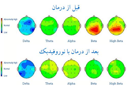 نقشه مغزی درمان با نوروفیدبک در مرکز مشاوره و روانشناسی کرانه خرد